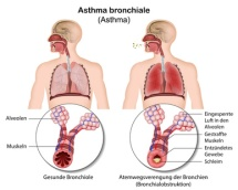 Asthma bronchiale, Bronchokonstriktion Illustration